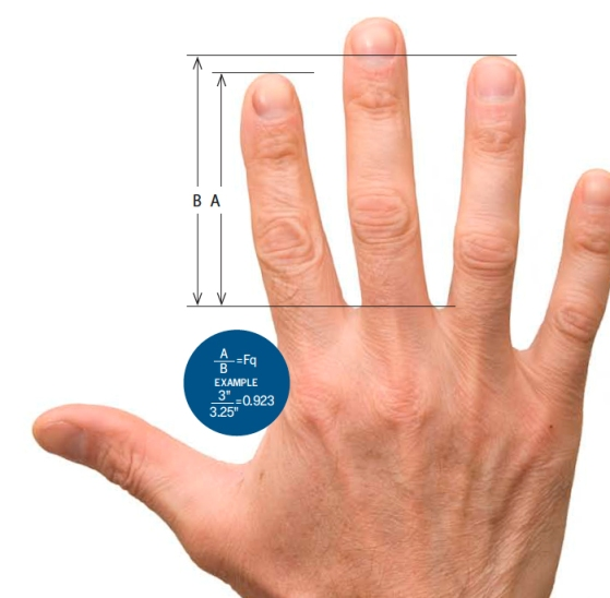 Does your pointer finger look like the after all the voting you've done since OL began?
